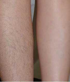 Kết quả triệt lông chân