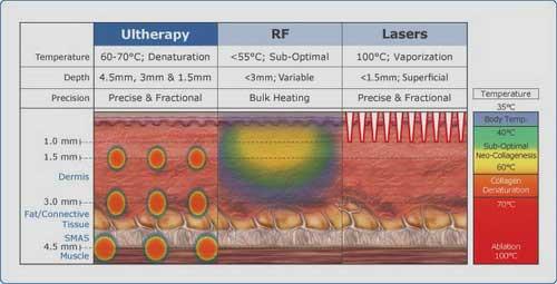 Khả năng nâng cơ của ultherapy