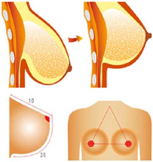 Nâng ngực chảy xệ kết hợp chỉ Collagen và sóng cao tần