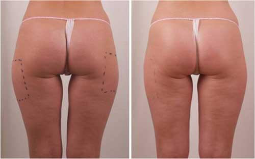 Săn chắc, thon gọn vùng mông đùi, chữa da sần ngấn mỡ