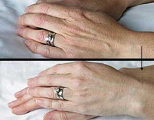 Trẻ hóa da bàn tay