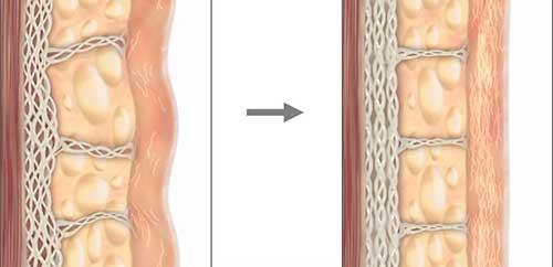 ultherapy xóa nhăn, nâng cơ