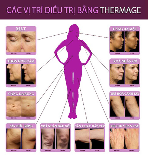 Các vị trí điều trị bằng Thermage