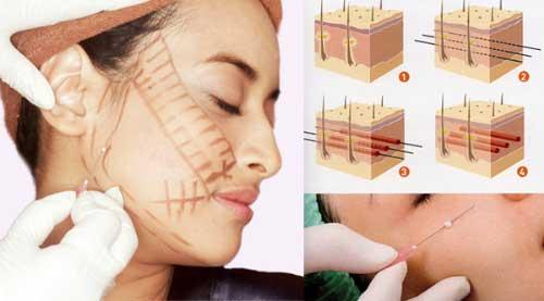 Cơ chế hoạt động của chỉ collagen trong da