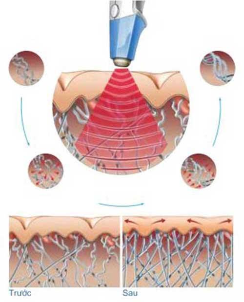 Năng lượng Sóng của công nghệ Ultra Reva làm trẻ hóa vùng kín