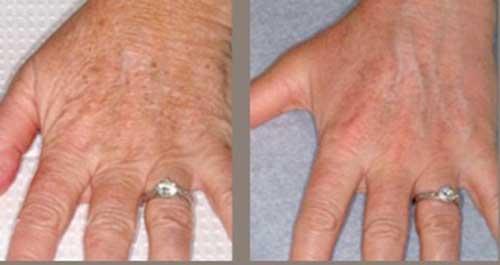 Trẻ hóa bàn tay