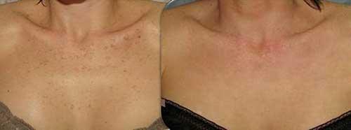 Trẻ hóa vùng cổ và ngực