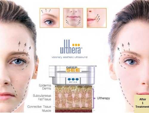 Ultherapy có tác dụng tạo mặt V-line