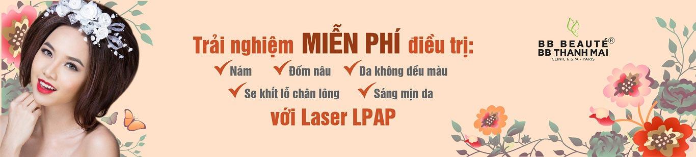 banner-trai-nghiem-laser