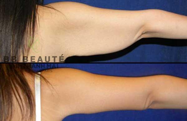 Kết quả giảm béo cánh tay