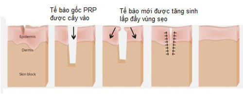 Làm mờ sẹo bằng tế bào gốc prp