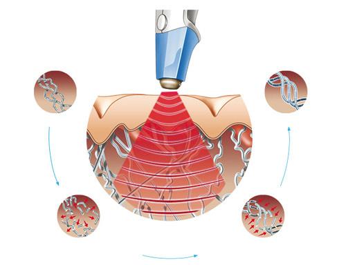 Năng lượng Sóng của công nghệ Ultra Reva