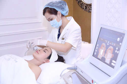 ultherapy-bb-thanh-mai