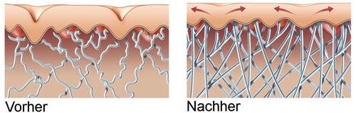 Công nghệ sóng đa tần giúp phục hồi nhanh chóng lớp colagen