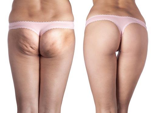 Kết quả nâng mông