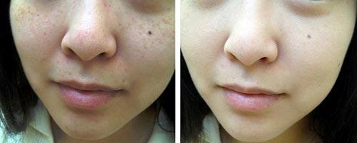 Hiệu quả Whiterning Baby Skin