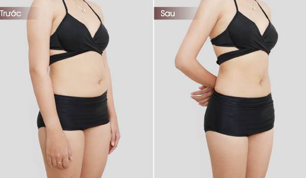 giảm béo FSM3