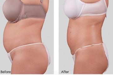 giảm béo FSM4