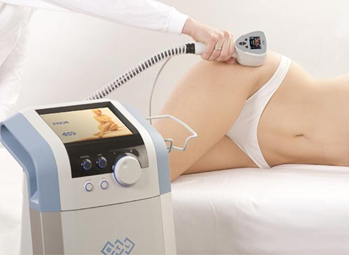 Phương pháp giảm béo sóng cao tần